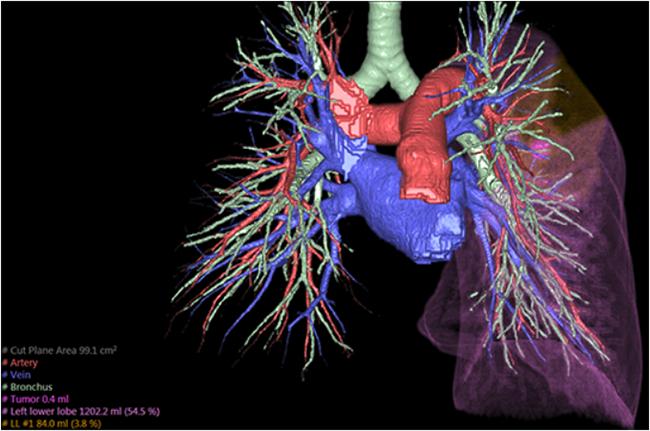 [imagen] Modelo 3D de arteria pulmonar, vena y otras regiones de los pulmones