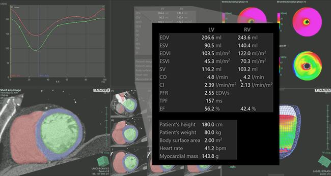 [imagen] Análisis de la función cardíaca de imágenes de TC del corazón