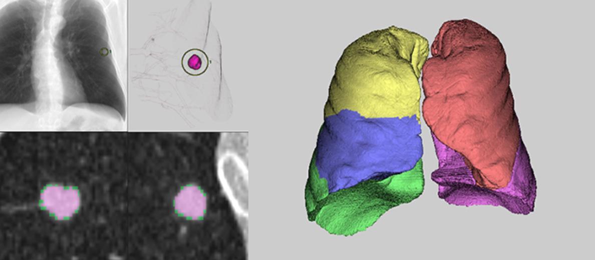 [imagen] Análisis de pulmón/vías respiratorias y 3D de pulmones con lóbulos de diferentes colores