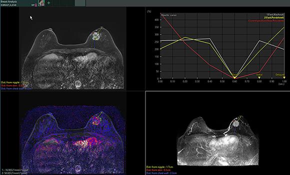[imagen] Imágenes por RM de análisis mamario de tejido mamario con tumor