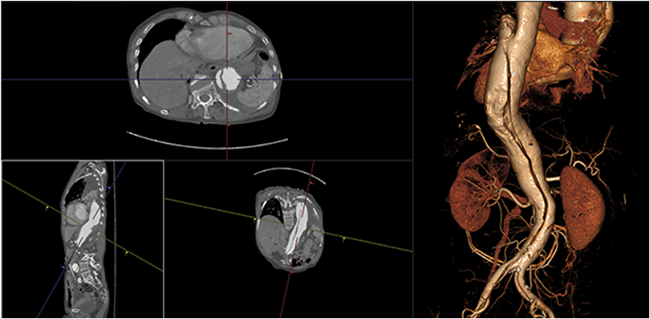 [imagen] Visor 3D de los datos de TC, RM, MN y TEP