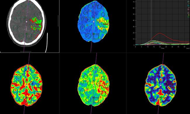 [imagen] Escaneo por TC de perfusión cerebral: imágenes resaltadas azules, verdes y rojas en el cerebro
