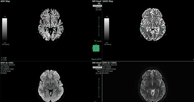 [imagen] Imagen de escaneo del cerebro en gris