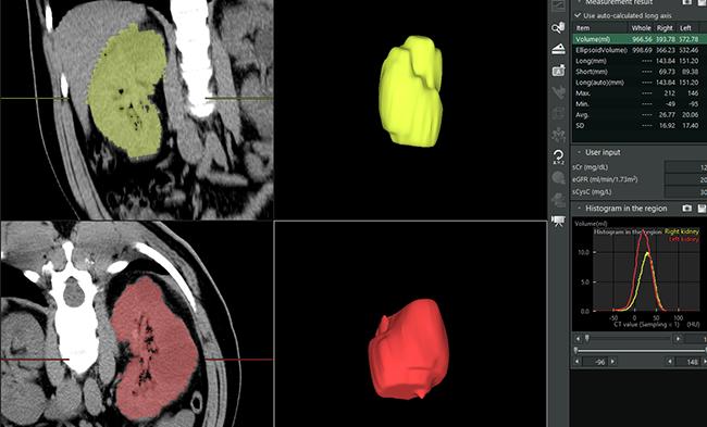 [imagen] Volumetría renal de los riñones izquierdo y derecho