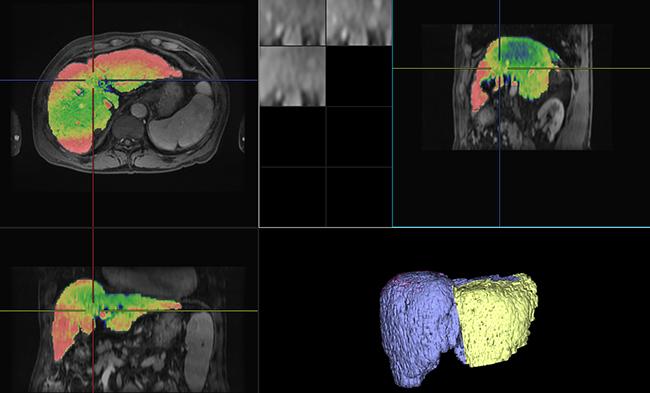 [imágenes] Imágenes por TC mejoradas con contraste de las regiones del hígado y el bazo
