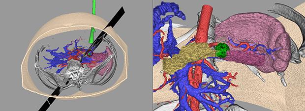 [imagen] Simulación endoscópica con segmentos de piel, huesos y órganos