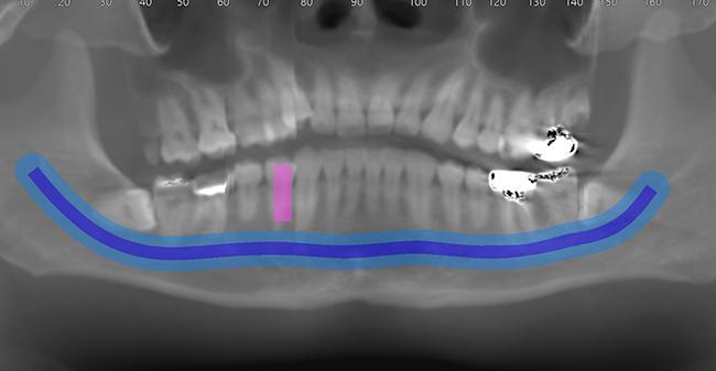 [imagen] TC de dientes y huesos alveolares