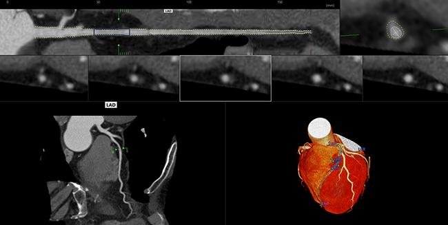 [imagen] Imagen de TC del corazón para análisis coronario