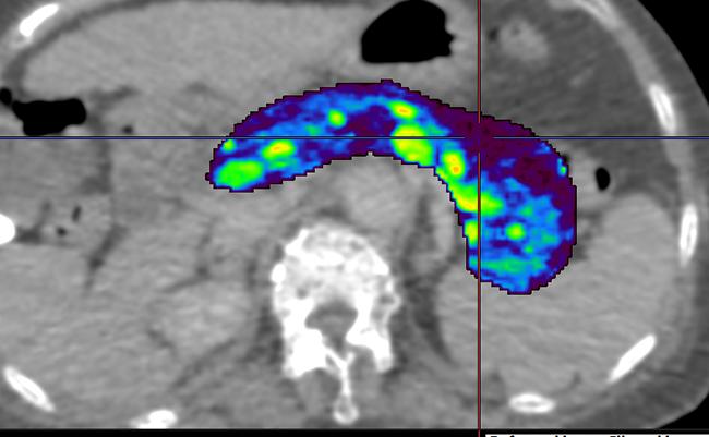 [imagen] TC de perfusión abdominal del análisis del flujo sanguíneo pancreático