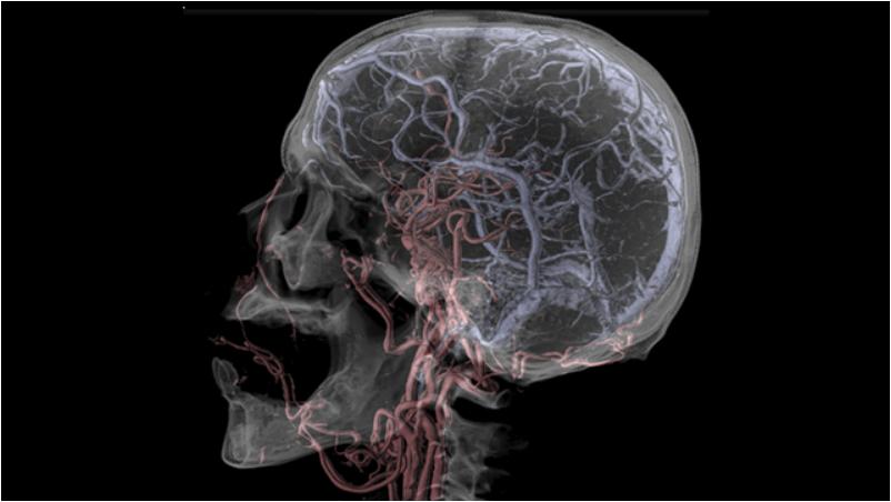[fotografía] Radiografía del cráneo que muestra los vasos sanguíneos y las regiones arterial/venosa del cerebro