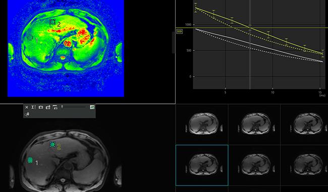 [imagen] Análisis de cartílago y colágeno con escaneo de color verde y azul