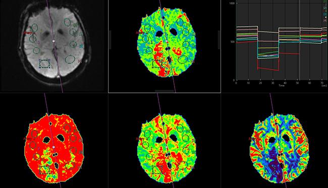[imagen] RM de perfusión cerebral: escaneo del cerebro con imágenes resaltadas azules, verdes y rojas