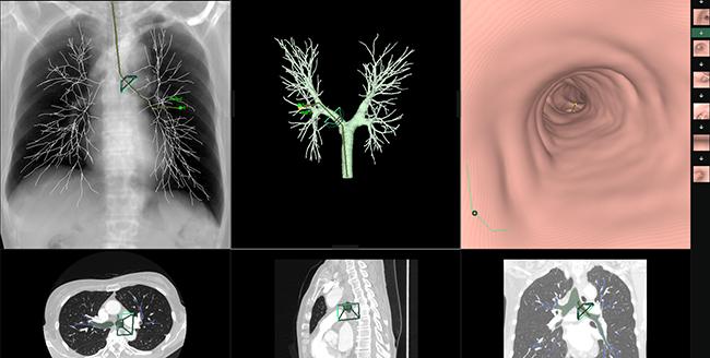 [imagen] Broncoscopio de pulmones y lesiones pulmonares