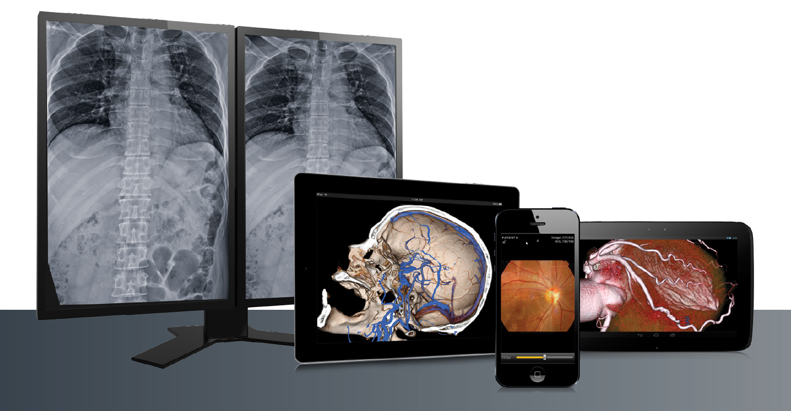 [photo] Images of lungs, skull, heart and eyes on computer and mobile screens
