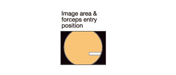 [image] Image area & forceps entry position