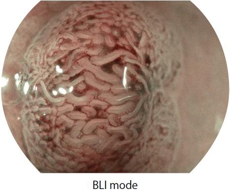 [photo] Endoscope image of colon in BLI mode