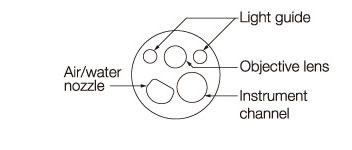 [image] Tip of scope with parts - light guide, lens, water jet, instrument channel