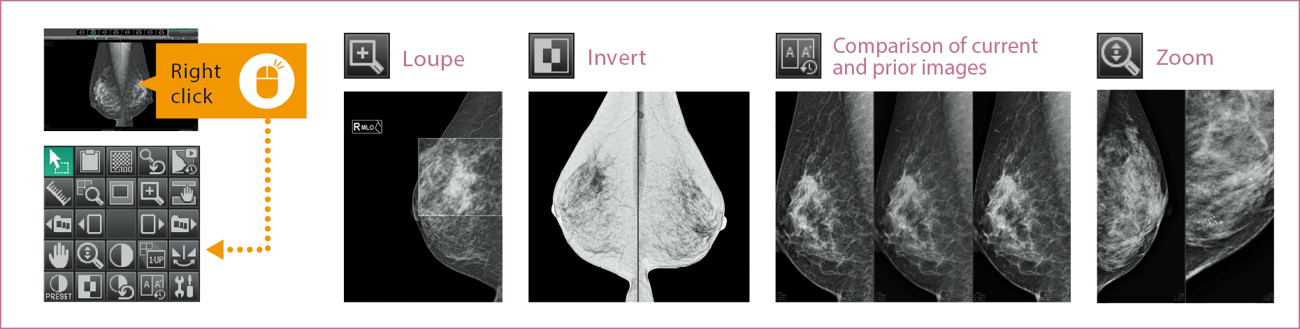 [image] Loupe, Invert, Comparison of current and prior images and Zoom X-rays