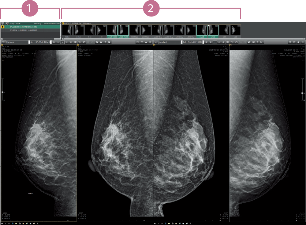 [image] Mammography (2D/Tomosynthesis/Comparisons with prior images)