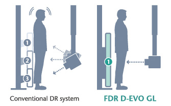 [photo] FDR D-EVO GL exam on person, using only one exposure