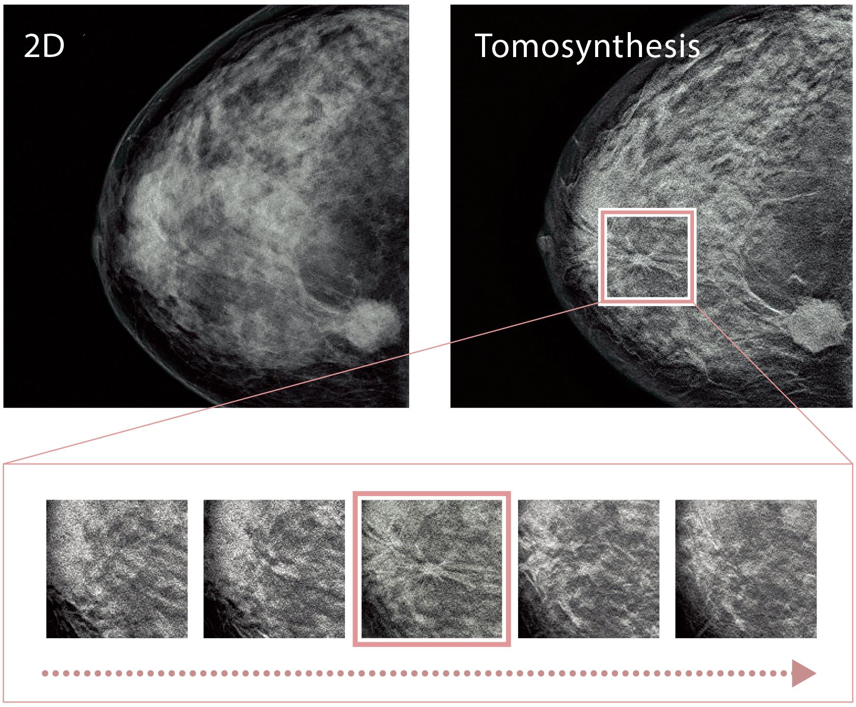 [imagen] Imagen lado a lado de una radiografía 2D y radiografía por tomosíntesis con un enfoque con borde rosado en la segunda imagen y zoom en las miniaturas