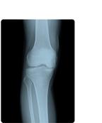 [photo] 26×36 sized image of knee