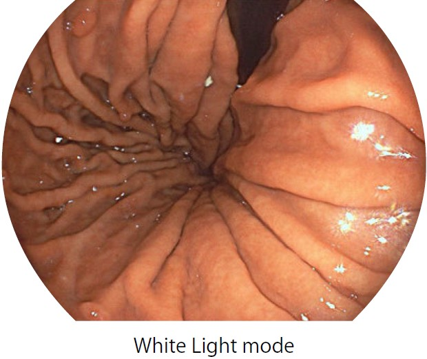 [photo] Endoscope image of stomach in White Light mode