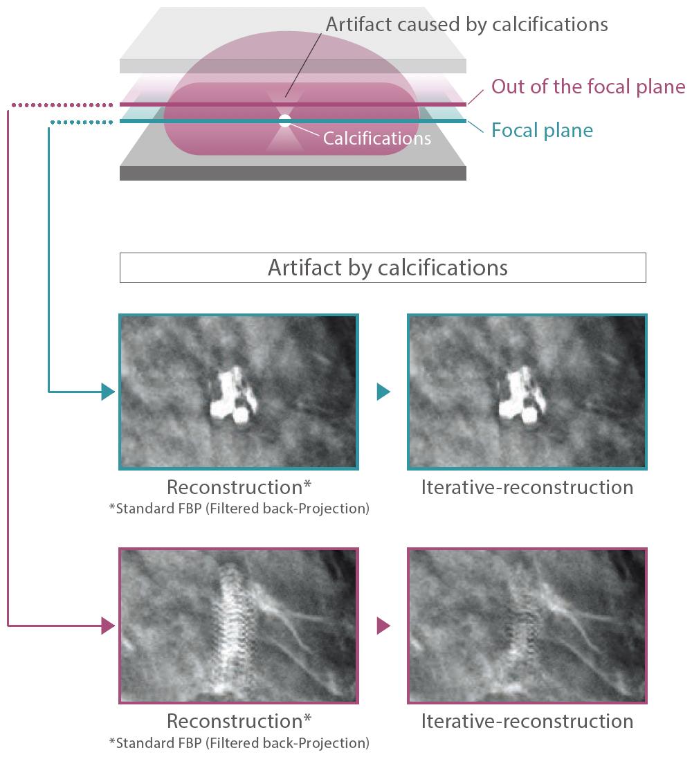 [imagen] Ejemplo de proceso de tomosíntesis y artefacto por calcificación en el tejido mamario