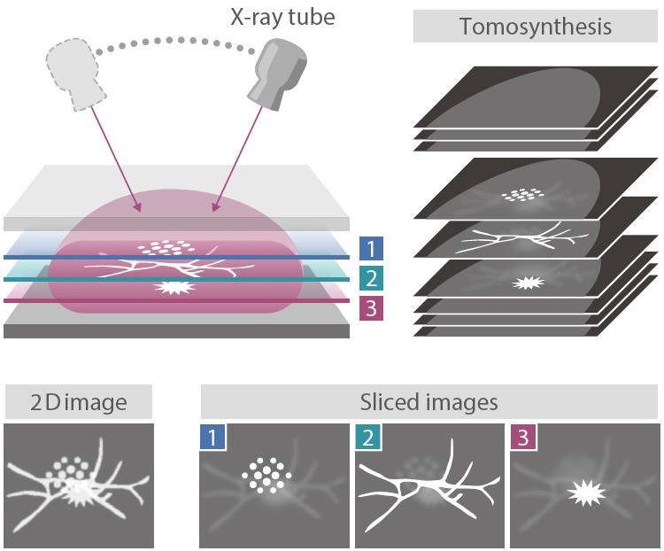 [imagen] Tubo de rayos X que se mueve en arco para la tomosíntesis que produce imágenes en corte que se combinan en una imagen 2D