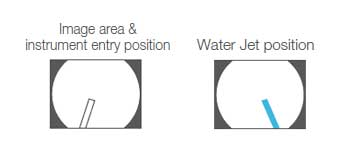[image] Image area & instrument entry position and water jet position