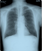 [photo] 35×43 sized image of chest and lungs