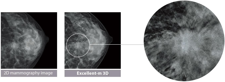 [foto] Imagen de mamografía 2D del tejido mamario en comparación con la imagen 3D de Excellent-m de la mama