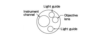 [image] Tip of scope with parts - light guides, objective lens, instrument channel