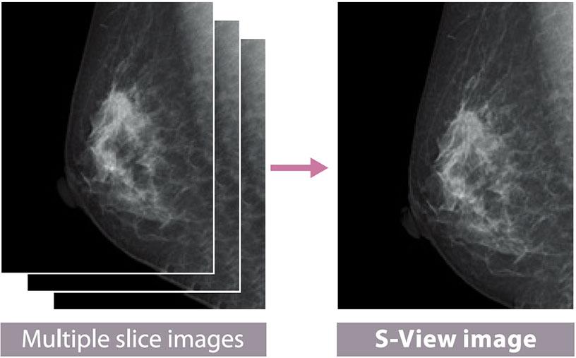 [foto] Imágenes de cortes múltiples del tejido mamario se combinan en una imagen S-view del tejido