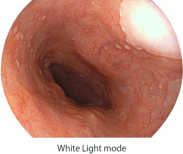 [photo] Endoscope image of esophagus in White Light mode