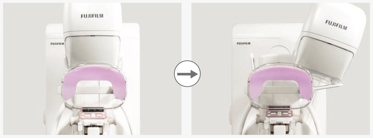 [foto] Retiro de la protección facial estática del dispositivo