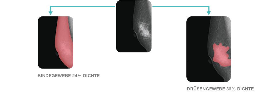 Der brust dichtes gewebe in 🏥 Dichtes
