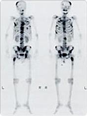 [写真] ガンマカメラで全身の骨を撮影した全身画像
