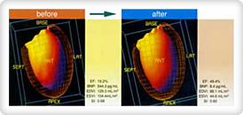 [写真]心筋の状態を治療の前後で観察した応用画像例