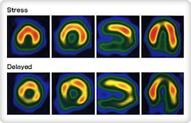 [写真]心臓のSPECT画像。これを基に種々情報が得る