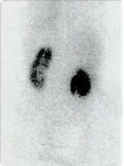 [写真]左右の腎臓の機能を見た画像