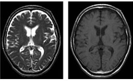 [図] MRI画像:頭蓋内(脳)