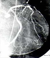 [写真]LCA(左回施枝) X線の透視画像