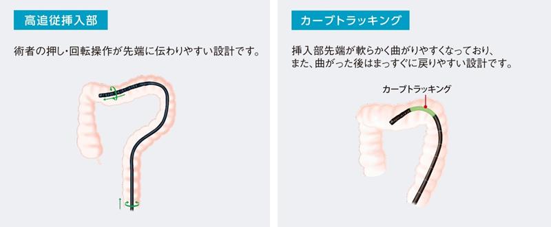 【製品画像】左:高追随挿入部、右:カーブトラッキング