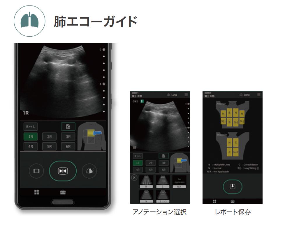 製品画像:iViz air Ver.4 肺エコーガイド