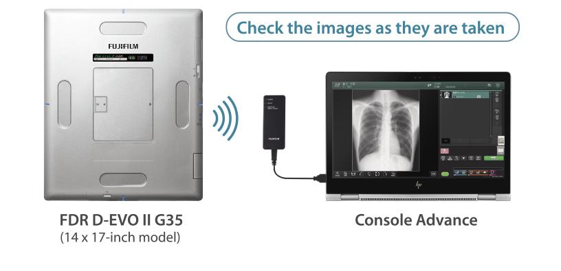 [foto] FDR D-EVO II G35 (modello 14 x 17pollici) argento che invia un segnale alla Console Advance con l'immagine radiografica di una cassa toracica sullo schermo