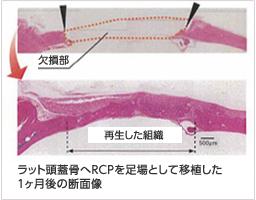 ラット頭蓋骨へRCPを足場として移植した1ヶ月後の断面像