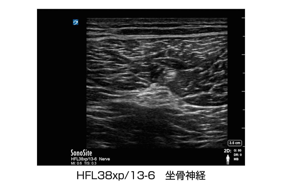 HFL38xp/13-6 坐骨神経