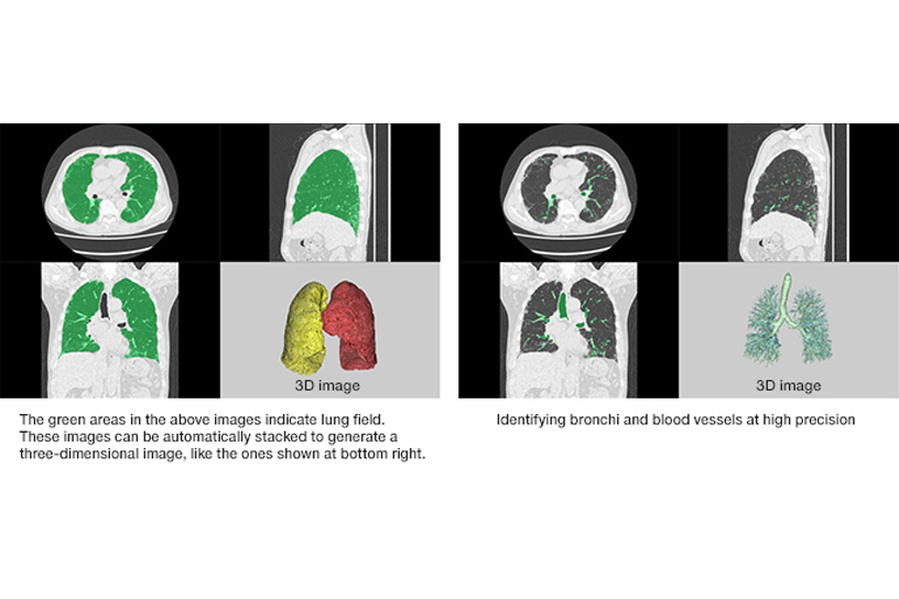 [Figure]The green areas in the above images indicate lung field. These images can be automatically stacked to generate a three-dimensional image, like the ones shown at bottom right. / Identifying bronchi and blood vessels at high precision