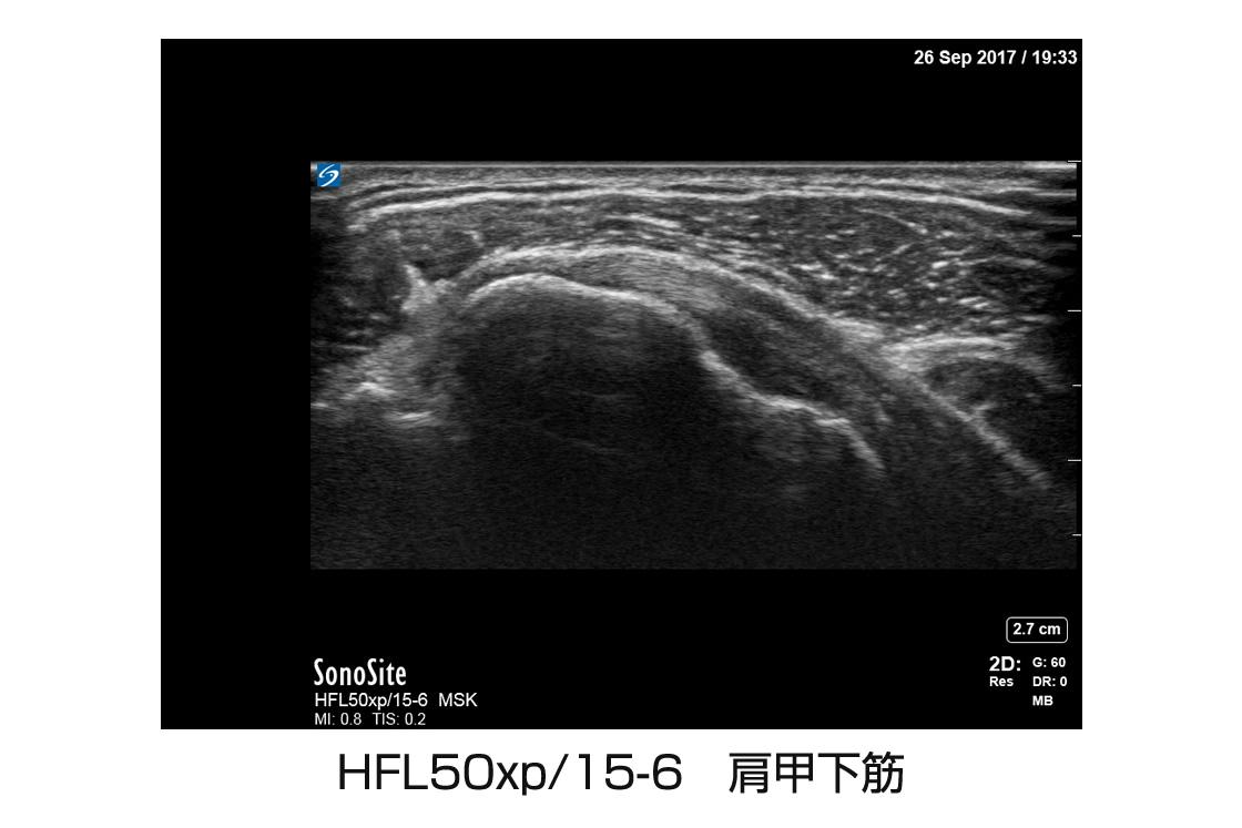 HFL50xp/15-6 肩甲下筋